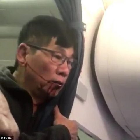 Flying The Fascist Skies? Did United Airlines Overreact To 69-year-old Vietnamese-American Doctor?